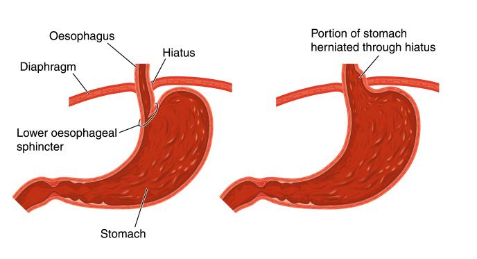 Gastro-oesophageal Reflux